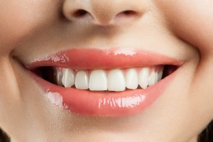 If you've considered improving the overall look of your smile, visit your cosmetic dentist in Mount Pleasant, SC to discuss porcelain veneers.