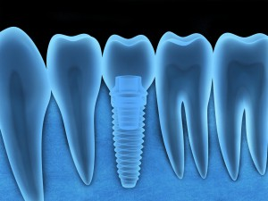 Did you know a dental implant in Mount Pleasant, SC can improve your oral health, in addition to making your smile look great? Find out more here!