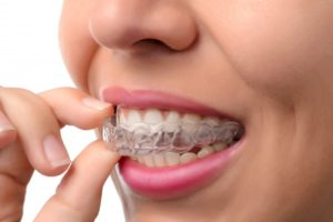 A person removing their clear aligners.